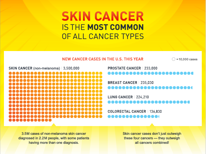 Some Information About Skin Cancer Apoiozedirceu Com